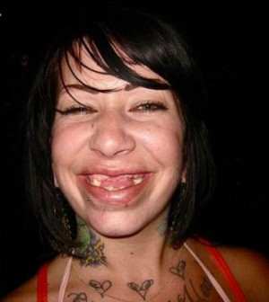 From Playbooks to Zoo to Rehabs, whitches wires to cuts....Red or Blues.....-redneck-chick-without-teeth-ugly-woman-bad-teeth-e1423039782289-300x336.jpg